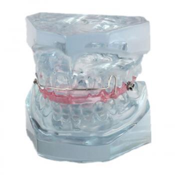 JX®歯模型・口腔模型M3006