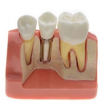 【10月特価商品】JX®歯科インプラント・クラウン歯模型M2017