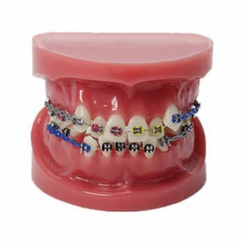JX®歯科歯列矯正歯模型M3005