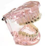 JX®歯科矯正歯模型M3009