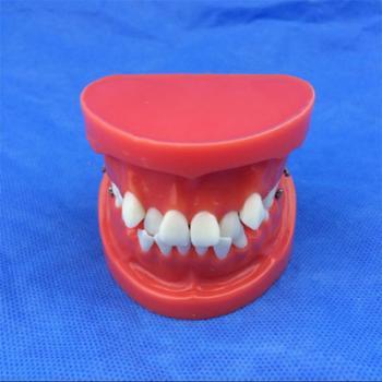 歯列模型 口腔模型 矯正歯模型SYM-26
