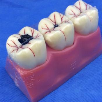 歯模型 口腔模型 4倍大臼歯虫歯模型SYM-29