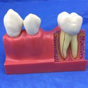 歯模型 口腔模型 4倍大臼歯模型 3分解模型SYM-31