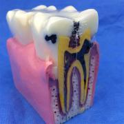 歯模型 口腔模型 大臼歯虫歯模型SYM-32