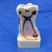 歯模型 口腔模型 4倍歯周病模型SYM-33