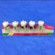 歯模型 口腔模型 歯周疾患分類模型SYM-38