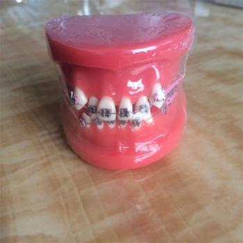 歯列模型 口腔模型 上下歯列矯正模型(メタルブラケット メタル矯正) HST-B1-01