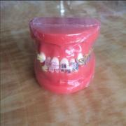 歯列模型 口腔模型 上下歯列矯正模型(セラミックブラケット メタルブラケット) HST-B1-02