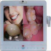 Magenta®歯科用口腔内カメラMD-1500 有線(VGA+VIDEO+USB)