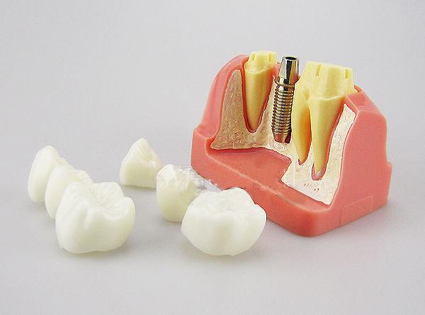 JX®歯科インプラント・クラウン歯模型M2017