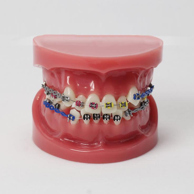 歯科歯列矯正歯模型M3005