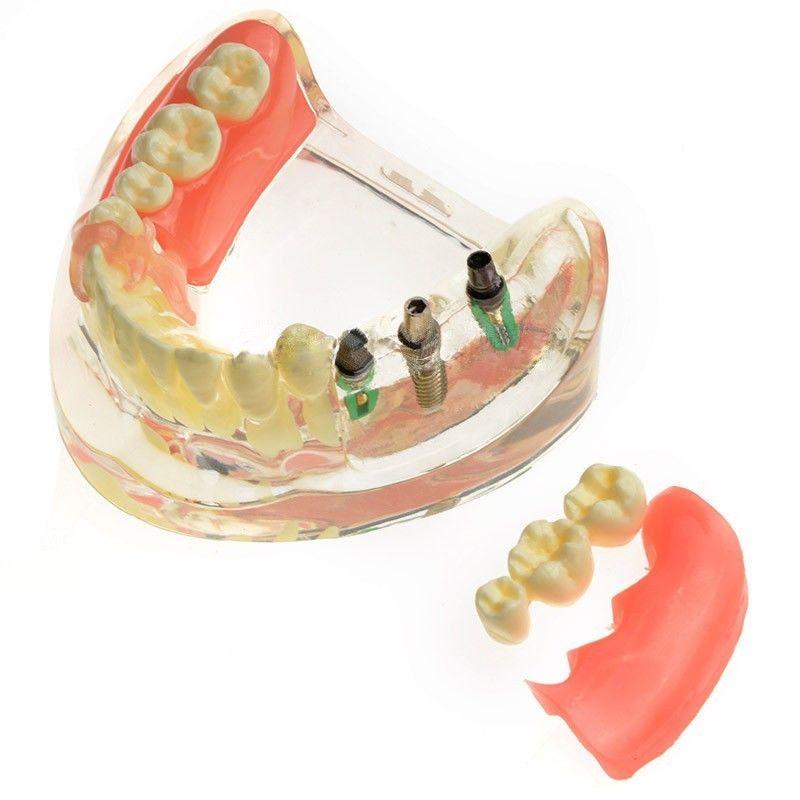 JX®歯科インプラント歯模型M6006